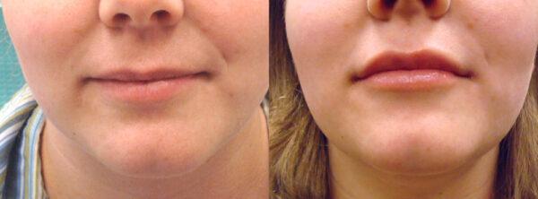 Juvederm ™ - Fairfield Dermatology